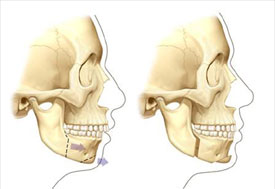 Sagittal split osteoteomy and sliding genoplasty
