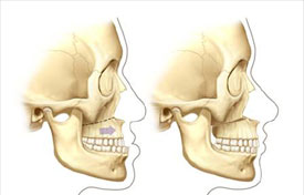 LeFort I osteotomy and advancement
