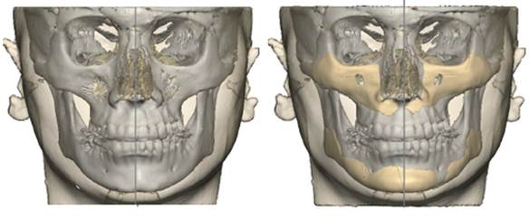 skeleton_facial_implant