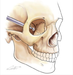 Eye socket walls