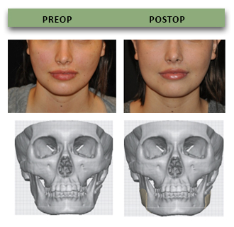 Alloplastic implant to facial bone