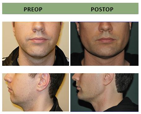 Mandible (Jaw) Implants | Jaw Implants Surgery | Boston